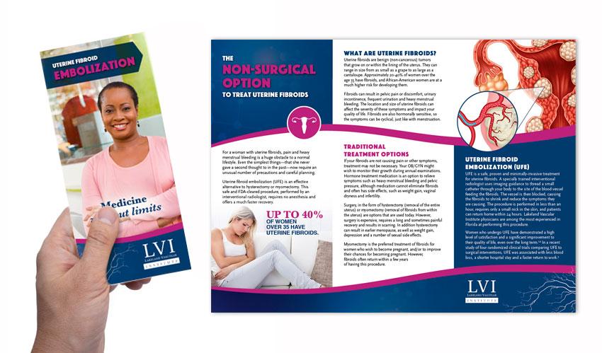 RIS UFE patient brochure